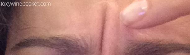 Giant Forehead Wrinkle